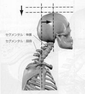 頭部前方移動は下部頸椎過屈曲上部頸椎過伸展