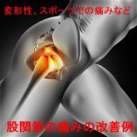股関節の痛み改善症例報告ページ