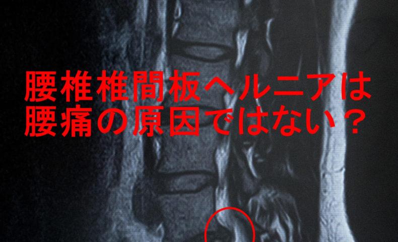 腰椎椎間板ヘルニア