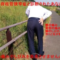 腰部脊柱管狭窄症 改善