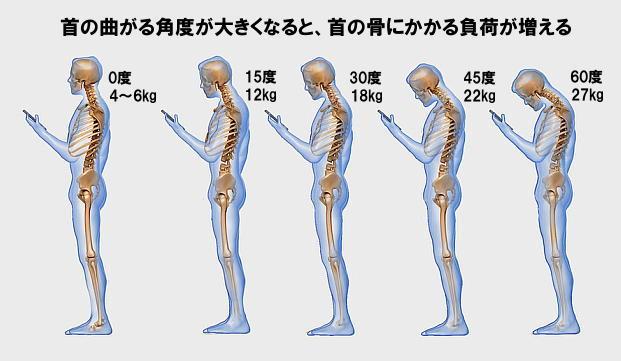 首を曲げることによる頸部の負担