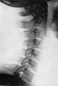 頸椎前彎(正常)