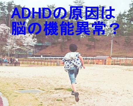 ADHD原因