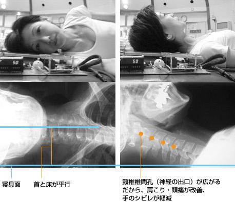 枕の頸椎画像