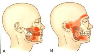 顎関節の問題による頭痛が起きる解説図