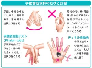 手根管症候群の検査