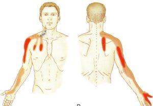 鎖骨下筋の関連痛部位