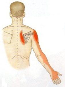 棘下筋の関連痛部位