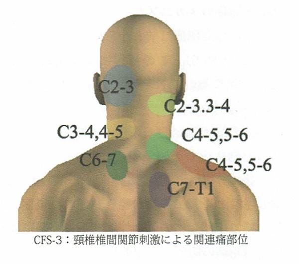 頸椎椎間関節刺激による関連通部位
