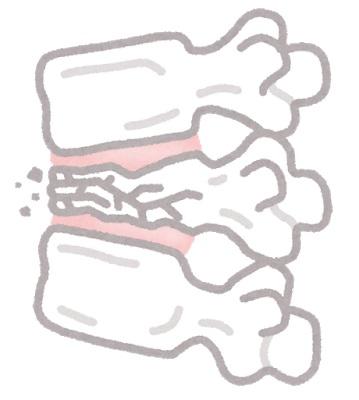 骨折が原因の腰痛
