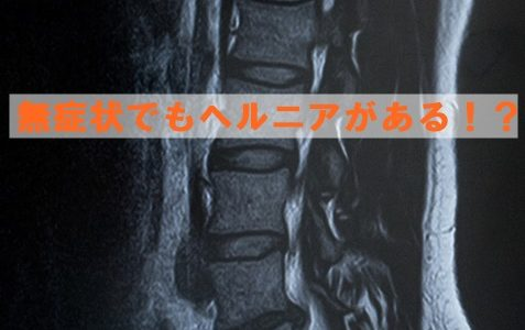 腰痛の画像所見と痛みは一致しない
