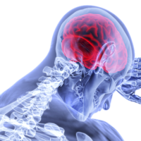 外傷が脳活性化領域に影響