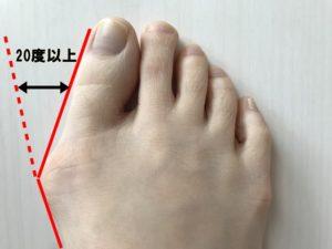 外反母趾解説図