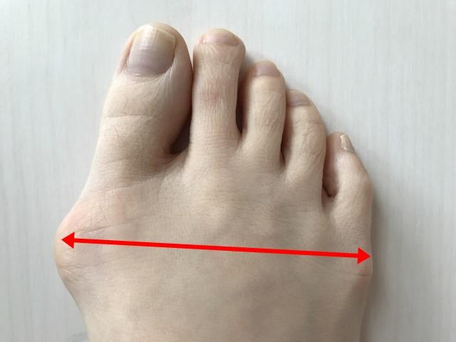 外反母趾 足底アーチの崩れが原因
