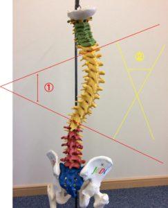 脊柱側弯症Cobe角