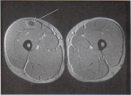 骨化性筋炎の画像所見